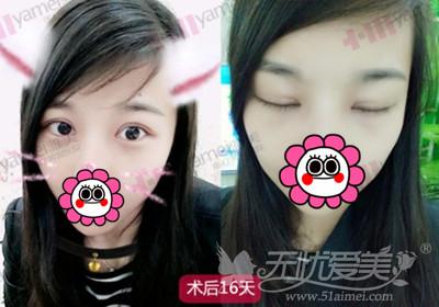 长沙雅美田芳斌专家做双眼皮术后半个月