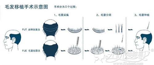 毛发移植手术操作过程