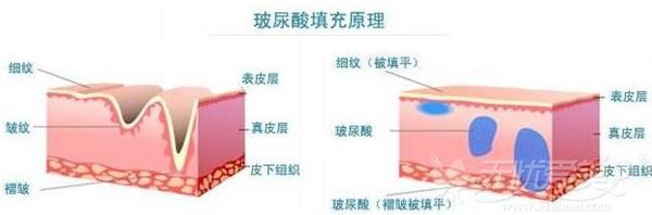 玻尿酸消除静态皱纹原理