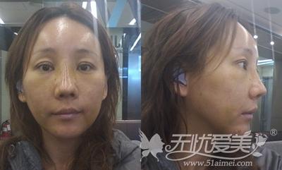 袁巧妮在韩国原辰做面部综合术后7天