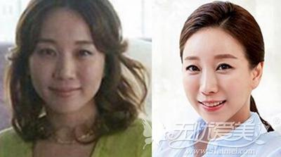 袁巧妮在韩国原辰做面部综合术前术后对比