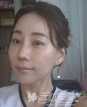 袁巧妮在韩国原辰做面部综合术后2周