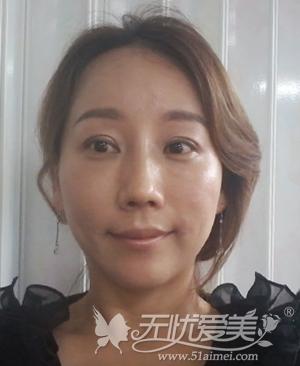 袁巧妮在韩国原辰做面部综合术后1个月