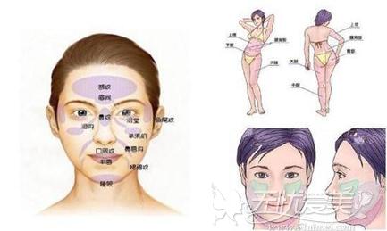 微创面部轮廓塑形显脸小