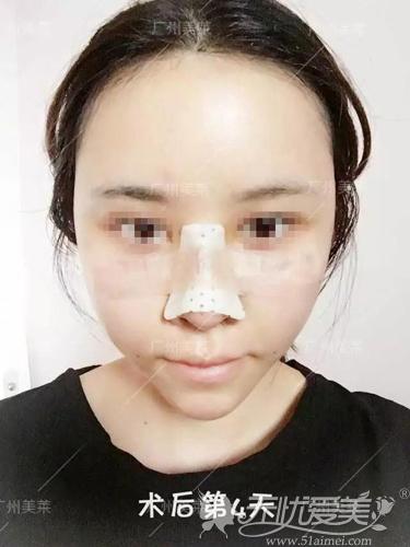 面部填充+鼻综合术后第4天