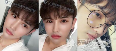 在上海华美做了双眼皮手术后14天照片