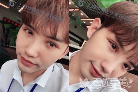 在上海华美做了双眼皮手术后7天照片