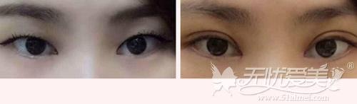 南方医科大学珠江医院陈兵专家双眼皮手术案例