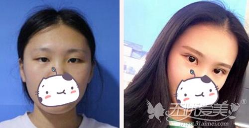 广州广美整形美容外科林勇专家双眼手术案例