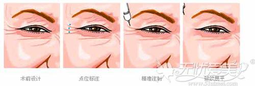 眼角注射除皱针过程