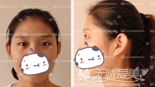 刘小姐在北京京民做双眼皮手术前照片