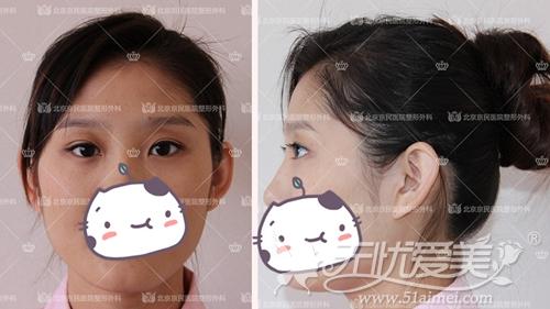 刘小姐在北京京民做双眼皮术后7天