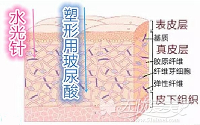 水光针和注射玻尿酸的注射层次不同