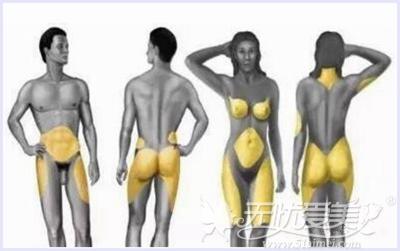 皮下脂肪细胞容易囤积的部位