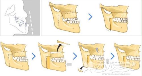 传统正颌手术过程