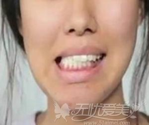 需要正颌手术的类型