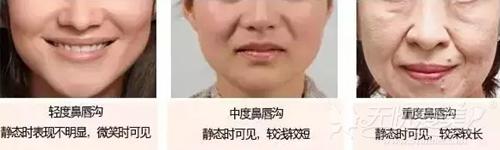 鼻唇沟的严重程度