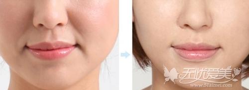 玻尿酸填充鼻唇沟案例