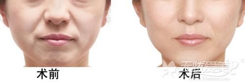面部线雕去除鼻唇沟案例