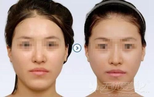 韩国X切骨V-line术案例展示