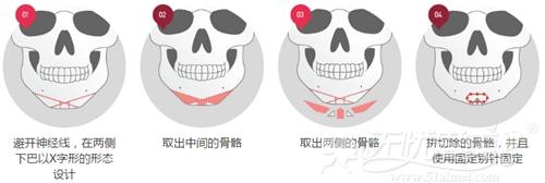 是韩国X切骨V—line手术过程