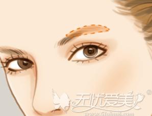 纹眉和绣眉的区别