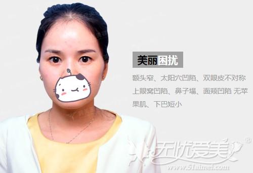 冉冉在北京玉之光做自体脂肪填充面部前