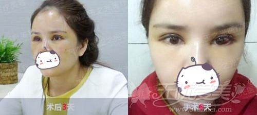 冉冉在北京玉之光做自体脂肪填充面部术后3-6天