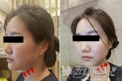 """第三代韩版超声刀""""舒丽可""""紧致面部案例"""