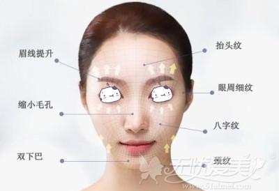"""第三代韩版超声刀""""舒丽可""""适合面部部位"""