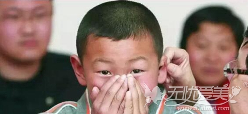 耳朵畸形修复与再造