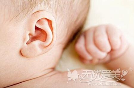 耳朵畸形修复年龄