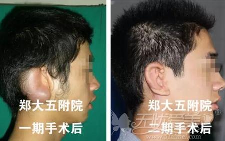 郑大五附院耳朵畸形修复案例