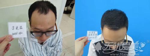 发际线植发前后对比
