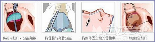 假体隆鼻手术方法