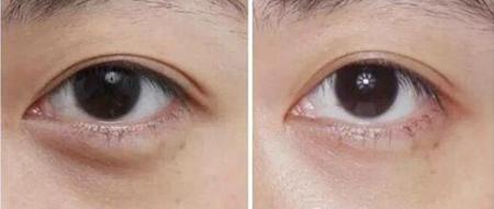 玻尿酸填充泪沟术后效果
