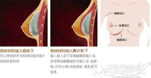 假体隆胸手术切口