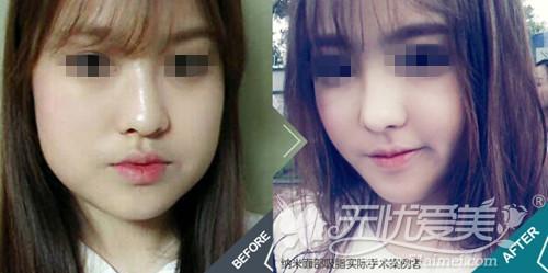 韩国纳米面部吸脂术手术案例