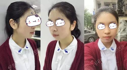梁小姐在南昌广济五天基因祛雀斑术后一周