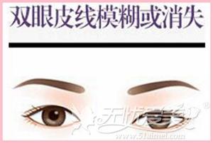 双眼皮线模糊或消失