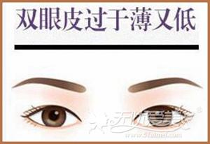 双眼皮过于薄又窄
