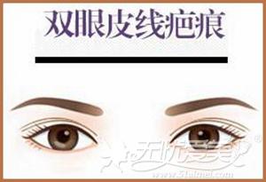 双眼皮术后疤痕
