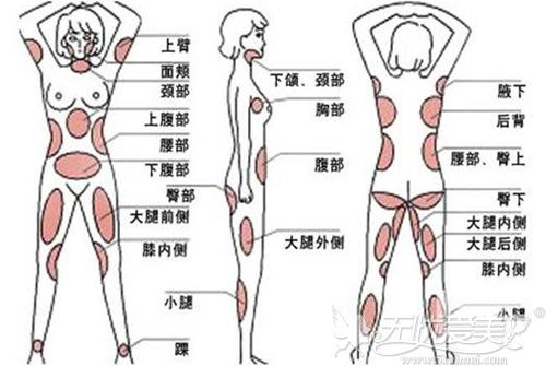 腿部吸脂的最佳部位