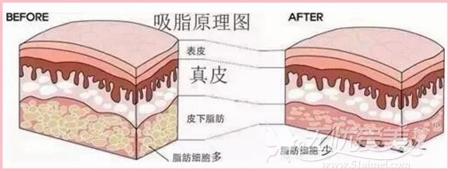 吸脂手术的原理