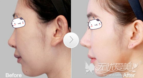 韩国自体肋骨隆鼻手术案例