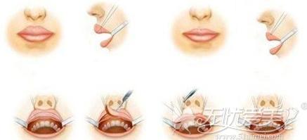 厚唇改薄手术原理