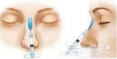 玻尿酸隆鼻注射的位置