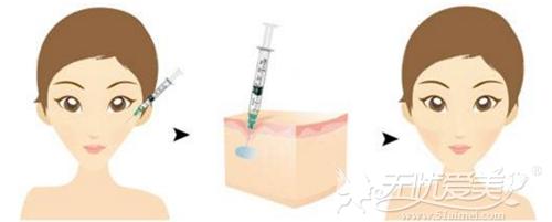 玻尿酸丰苹果肌原理