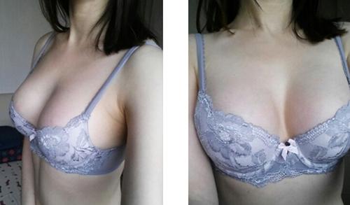 在韩国麦恩整形医院做水滴形假体隆胸术后三个月