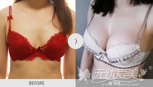 在韩国麦恩整形医院做水滴形假体隆胸术前术后对比